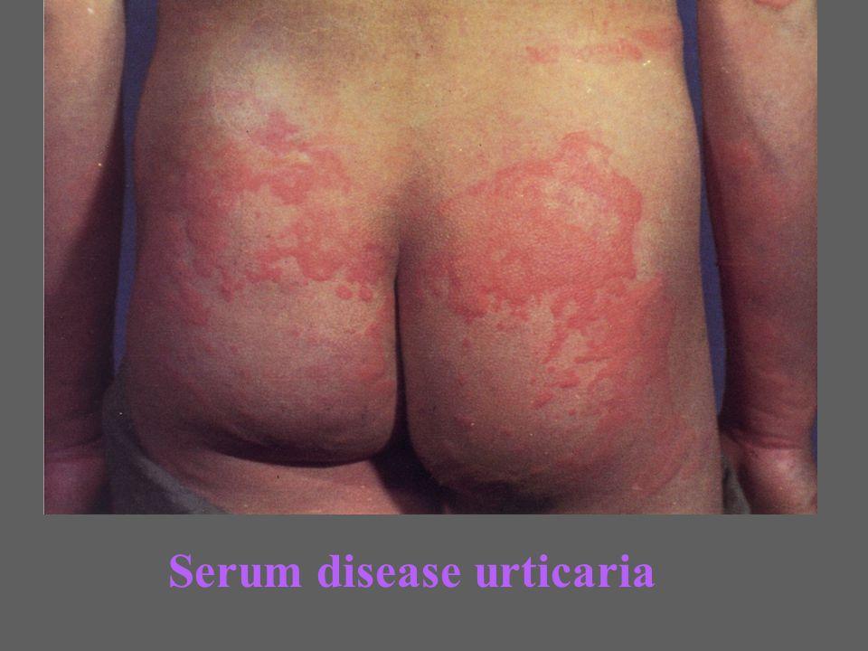 Serum disease urticaria
