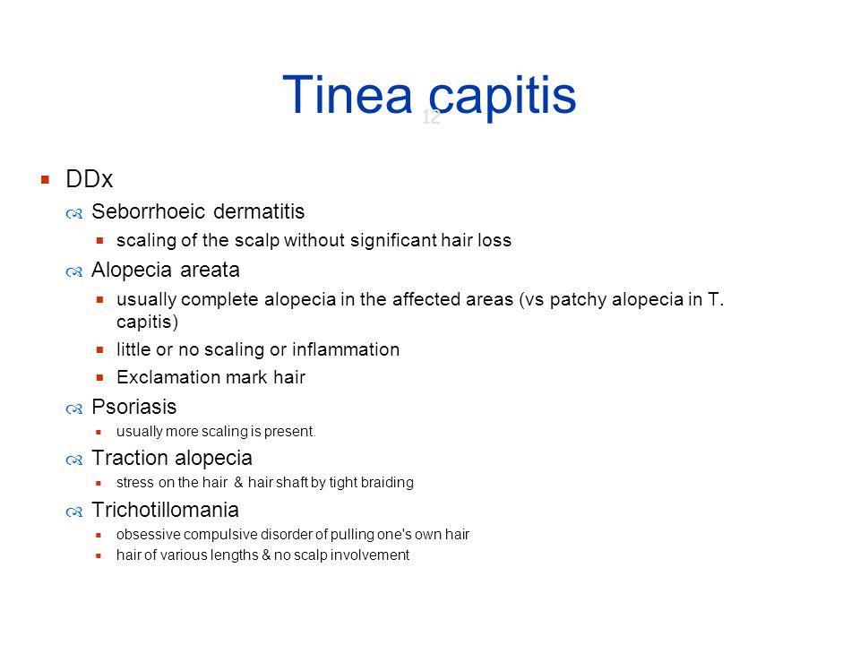 Tinea capitis DDx Seborrhoeic dermatitis Alopecia areata Psoriasis