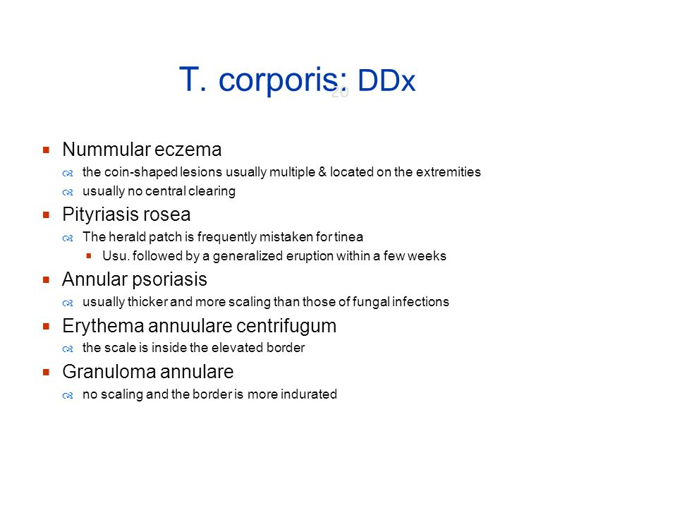 T. corporis: DDx Nummular eczema Pityriasis rosea Annular psoriasis
