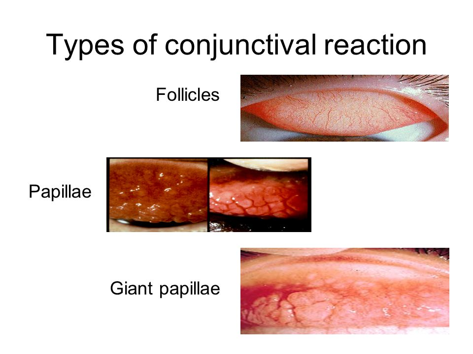 Types of conjunctival reaction