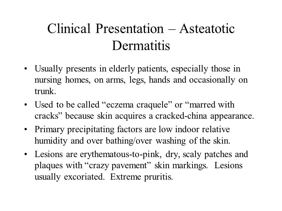 Clinical Presentation – Asteatotic Dermatitis