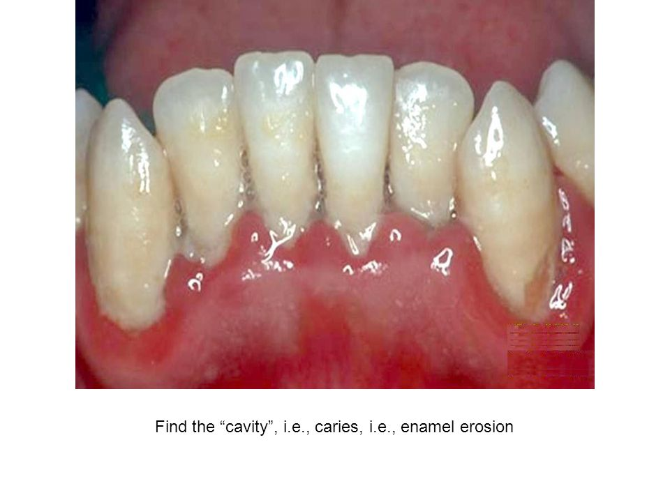 Find the cavity , i.e., caries, i.e., enamel erosion