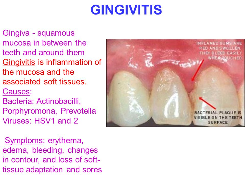 GINGIVITIS Gingiva - squamous mucosa in between the teeth and around them. Gingivitis is inflammation of the mucosa and the associated soft tissues.