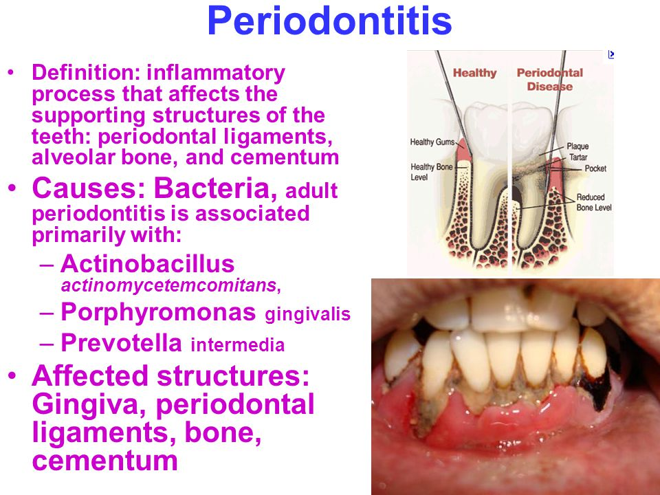 definition periodontal