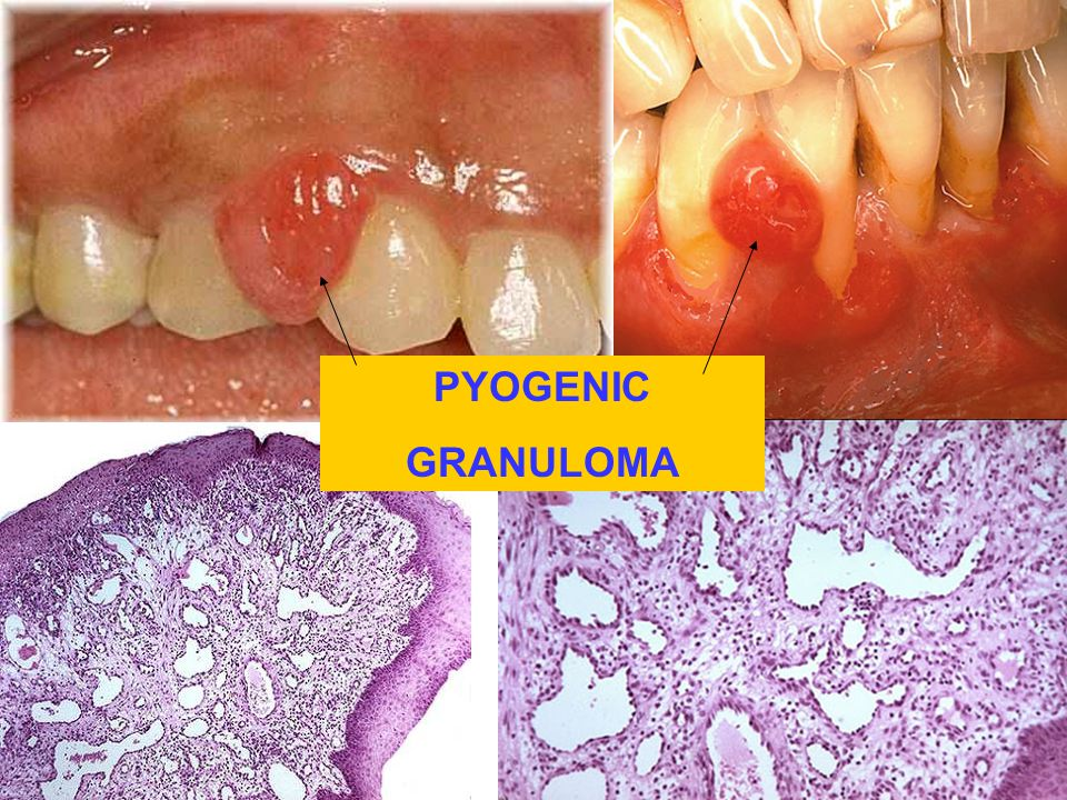 PYOGENIC GRANULOMA. Granuloma or neoplasm or granulation tissue Who cares