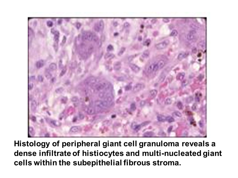 Histology of peripheral giant cell granuloma reveals a dense infiltrate of histiocytes and multi-nucleated giant cells within the subepithelial fibrous stroma.