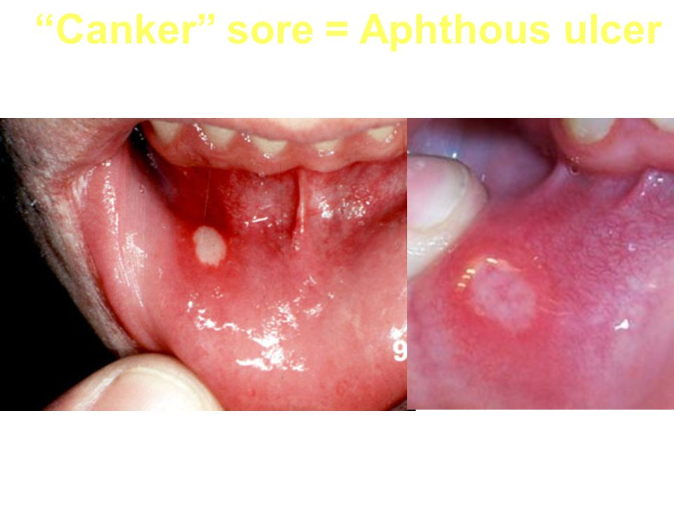 Canker sore = Aphthous ulcer