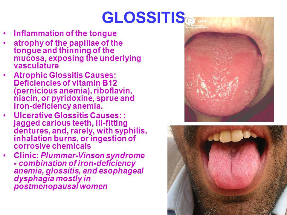GLOSSITIS Inflammation of the tongue