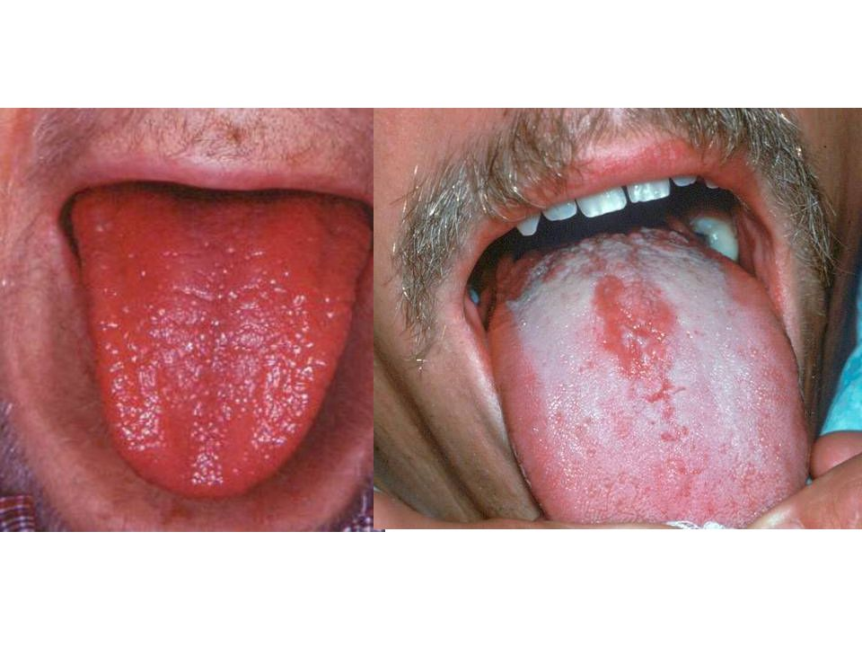 Glossitis: Bacterial or viral infections (including oral herpes simplex).
