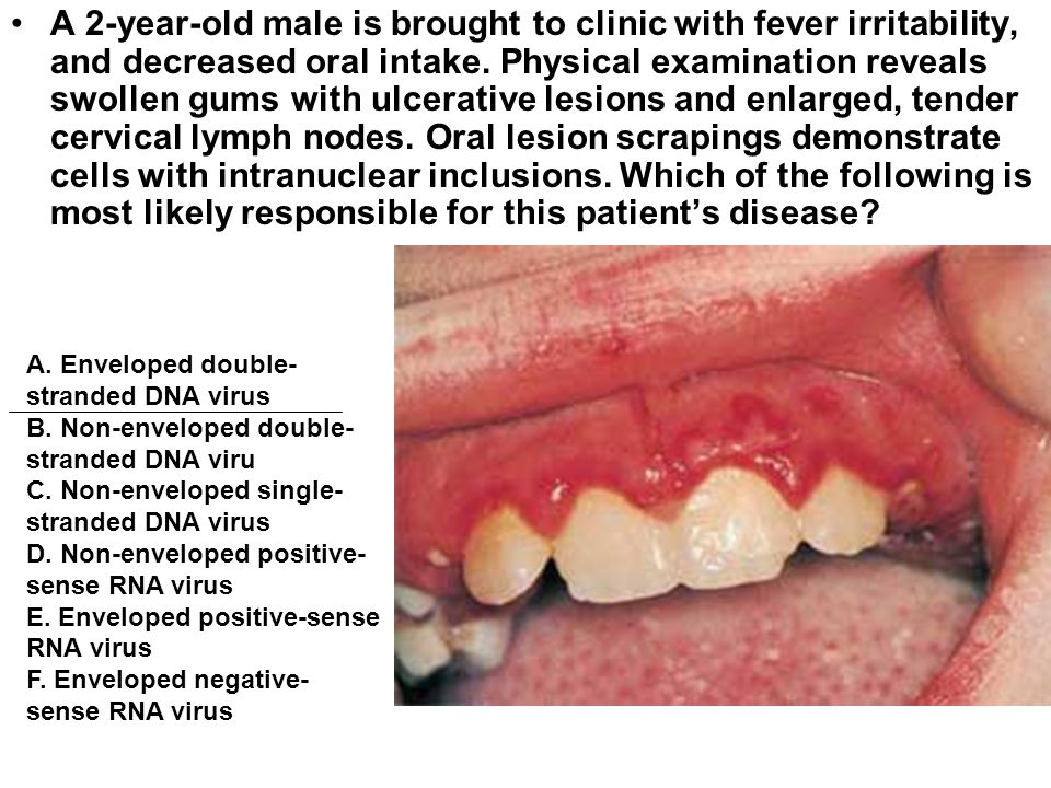 A 2-year-old male is brought to clinic with fever irritability, and decreased oral intake. Physical examination reveals swollen gums with ulcerative lesions and enlarged, tender cervical lymph nodes. Oral lesion scrapings demonstrate cells with intranuclear inclusions. Which of the following is most likely responsible for this patient's disease