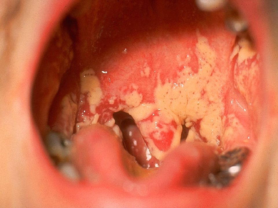 White filmy patches NOT firmly attached to the underlying moist non-keratinized stratified squamous mucosa.