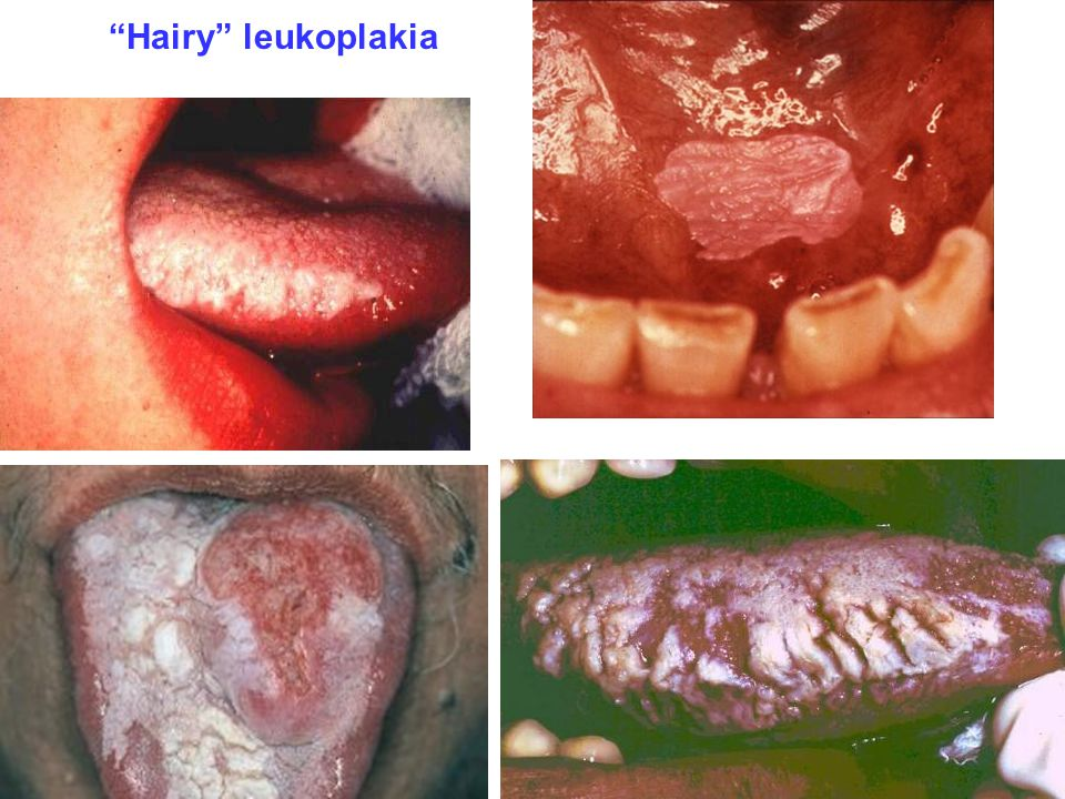 Hairy leukoplakia