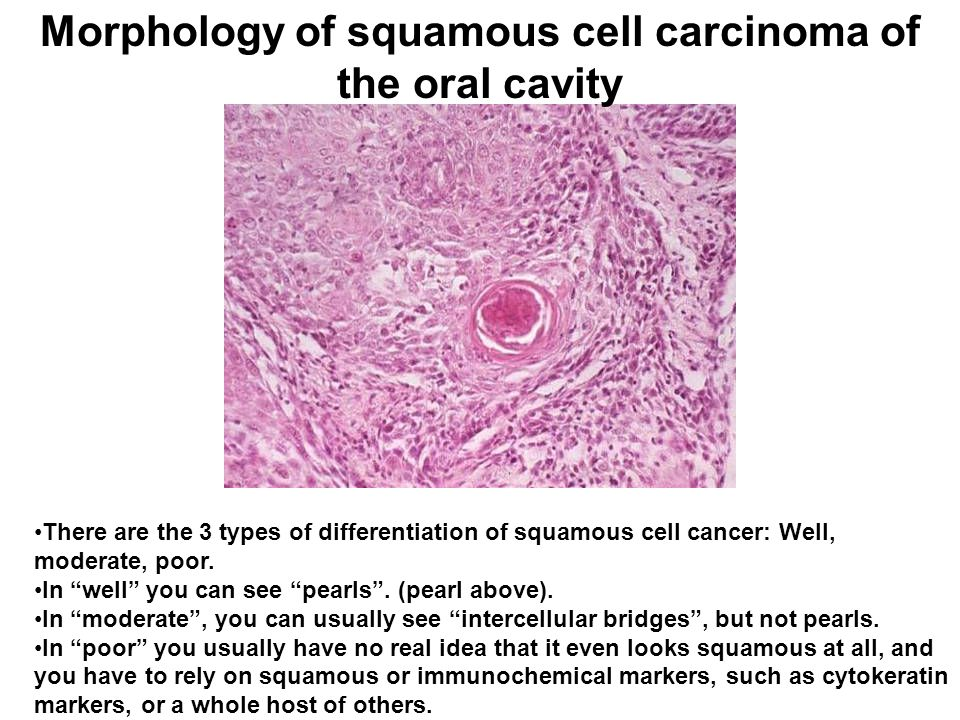 Morphology of squamous cell carcinoma of the oral cavity