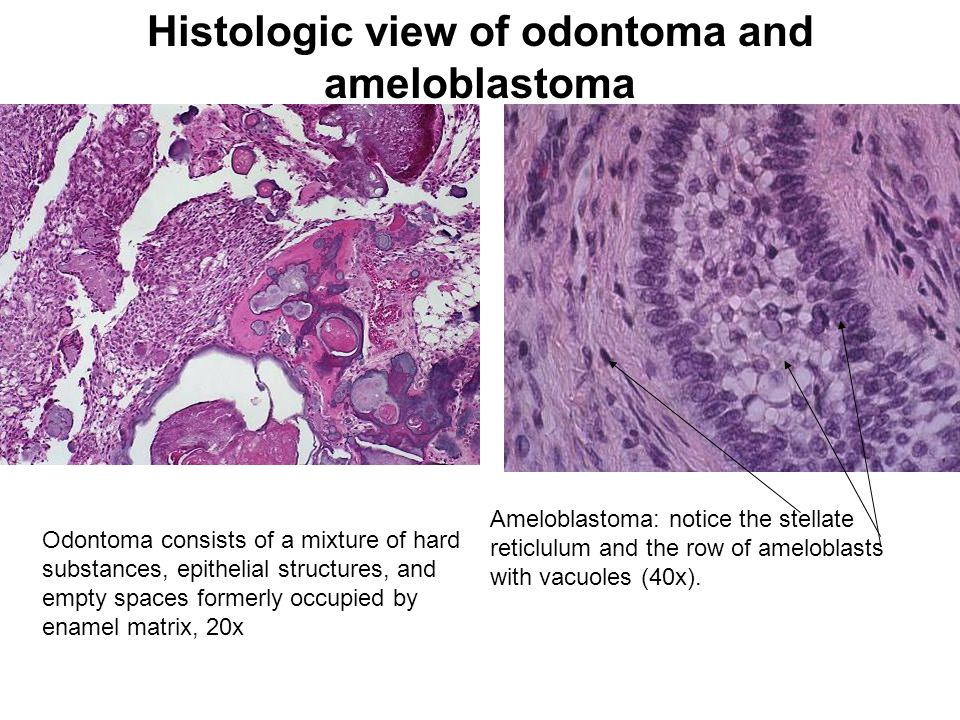 Histologic view of odontoma and ameloblastoma