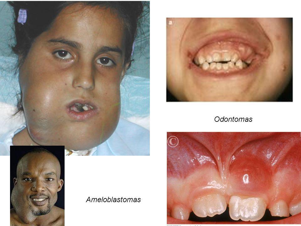Odontomas Ameloblastomas