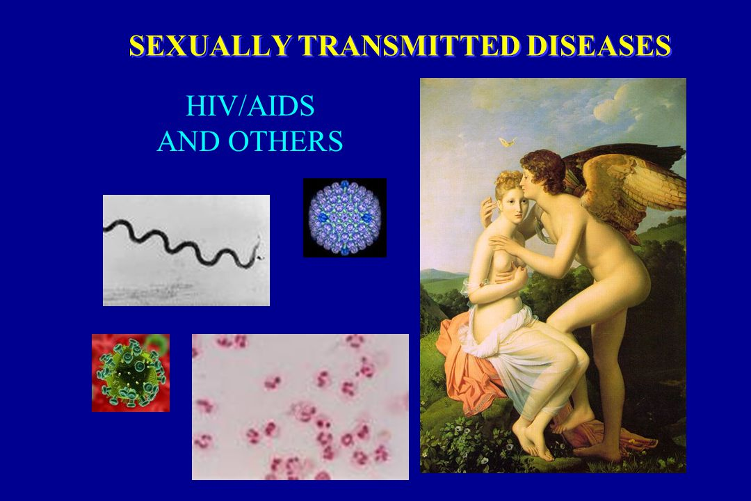 Sexually Transmitted Diseases In The Elderly