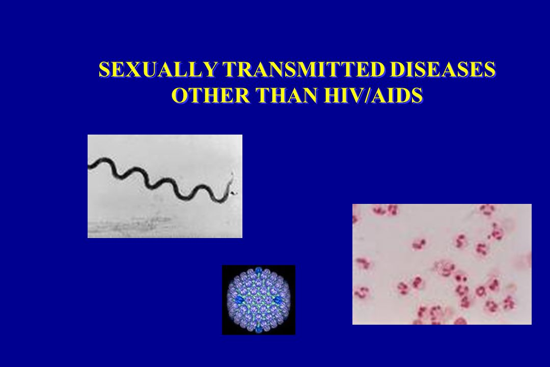 SEXUALLY TRANSMITTED DISEASES OTHER THAN HIV/AIDS