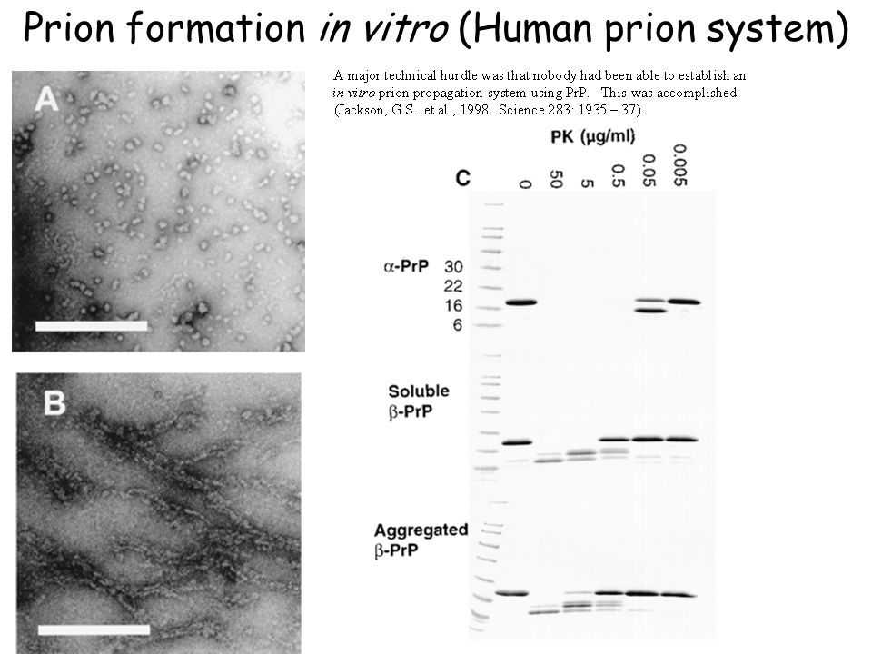 Prion formation in vitro (Human prion system)