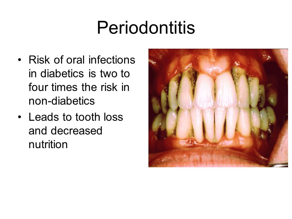 Periodontitis Risk of oral infections in diabetics is two to four times the risk in non-diabetics.