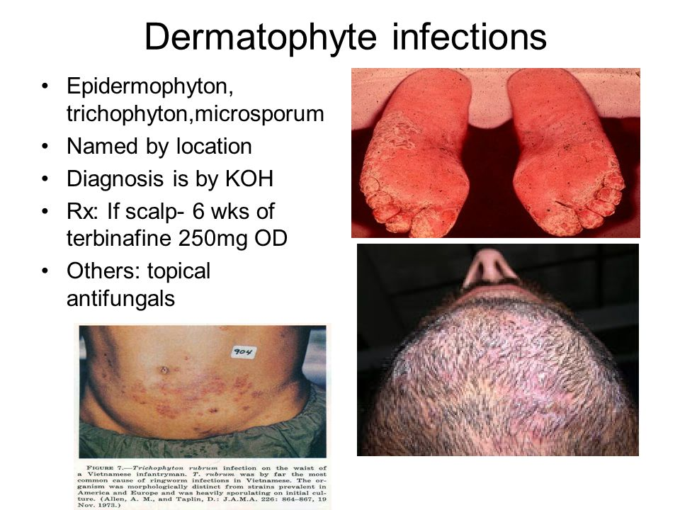 Dermatophyte infections