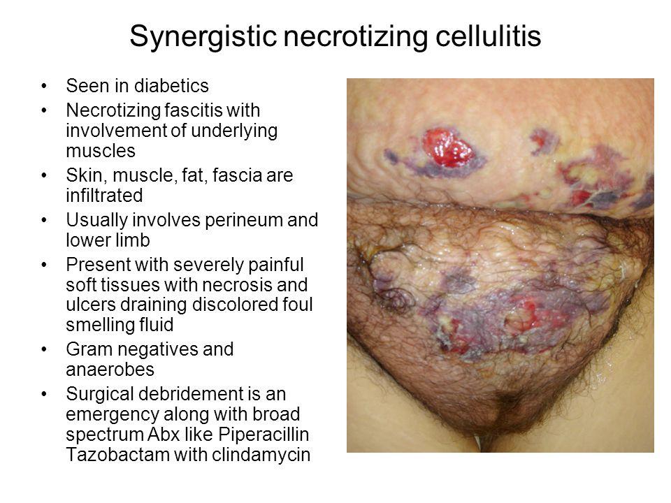 Synergistic necrotizing cellulitis