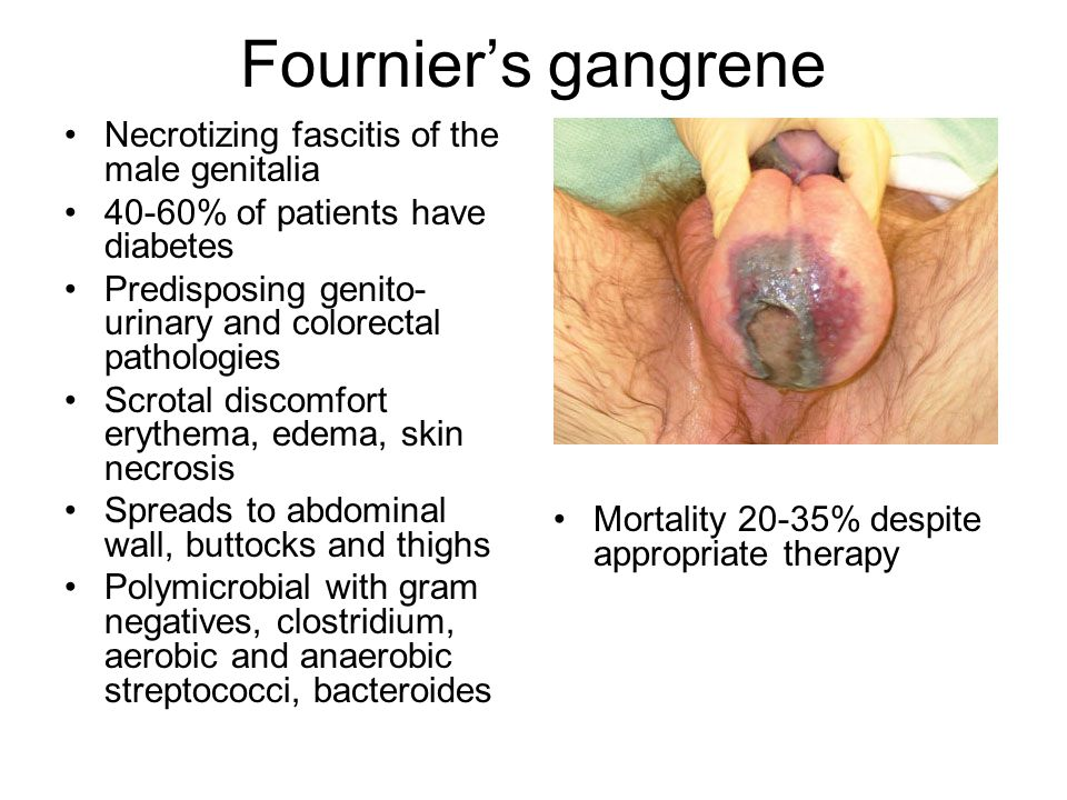Fournier's gangrene Necrotizing fascitis of the male genitalia