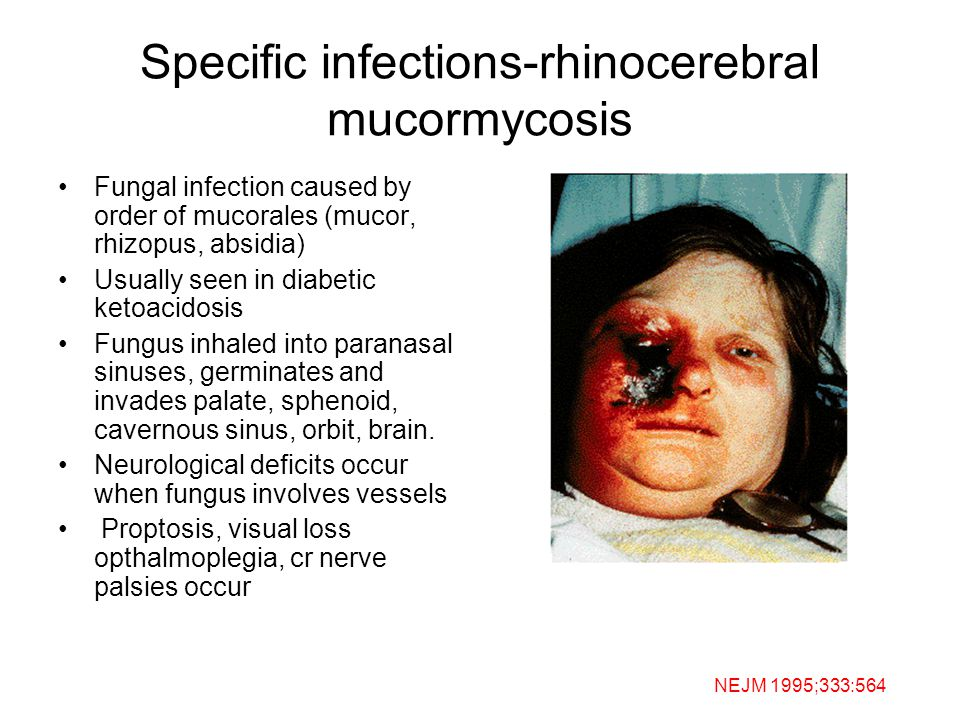 Specific infections-rhinocerebral mucormycosis