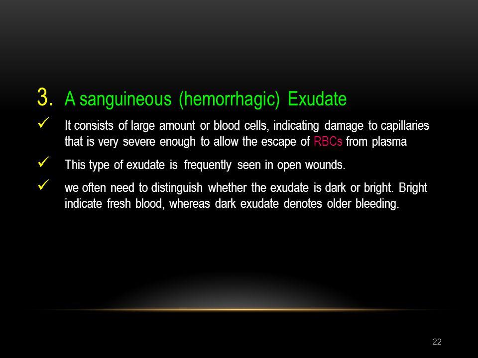 A sanguineous (hemorrhagic) Exudate