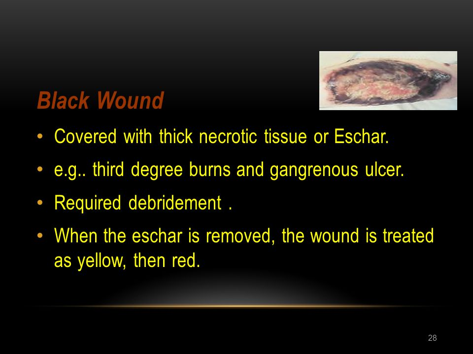 Black Wound Covered with thick necrotic tissue or Eschar.