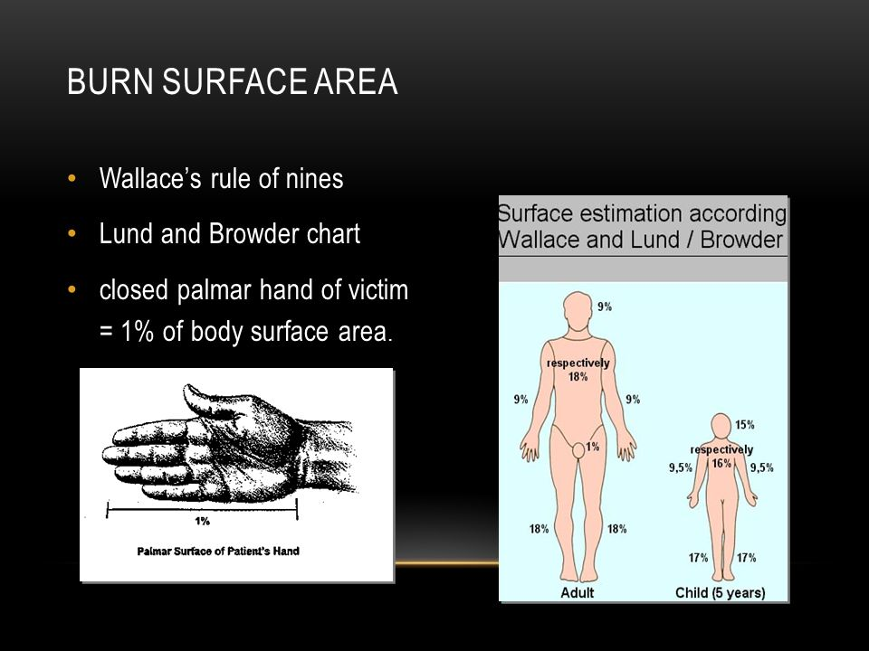 Burn Surface Area Wallace's rule of nines Lund and Browder chart