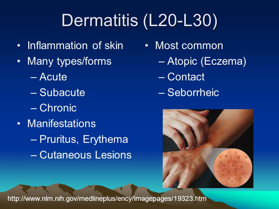 Dermatitis (L20-L30) Inflammation of skin Many types/forms Acute