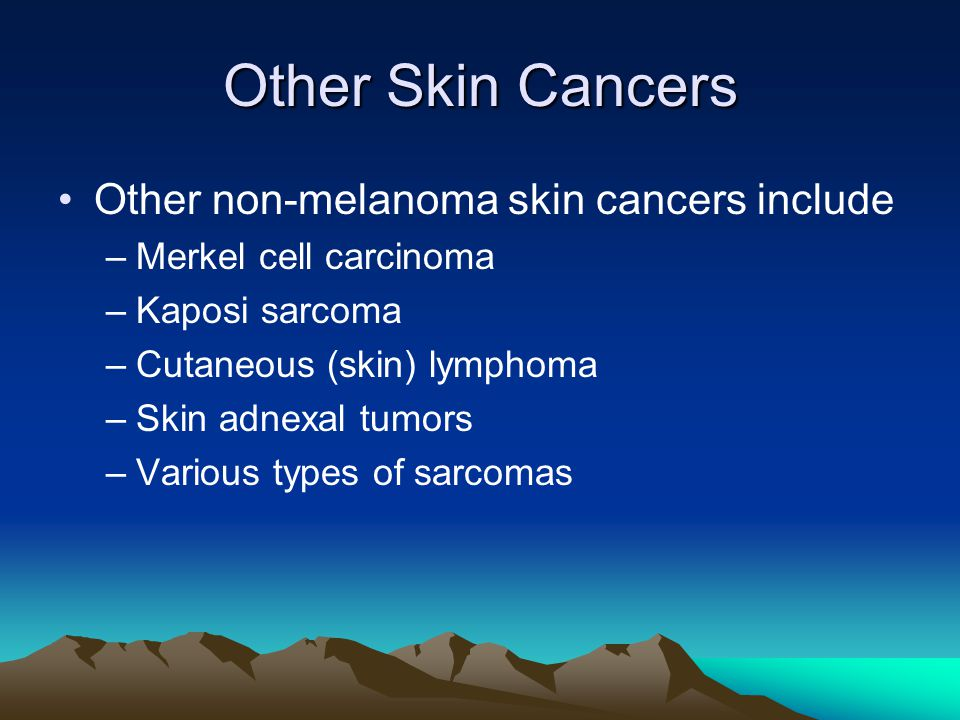 Other Skin Cancers Other non-melanoma skin cancers include
