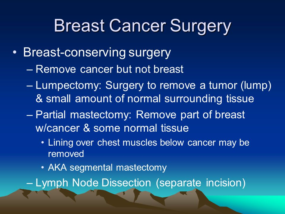 Breast Cancer Surgery Breast-conserving surgery