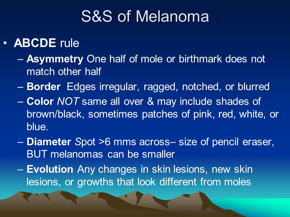 S&S of Melanoma ABCDE rule