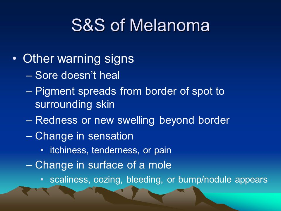 S&S of Melanoma Other warning signs Sore doesn't heal