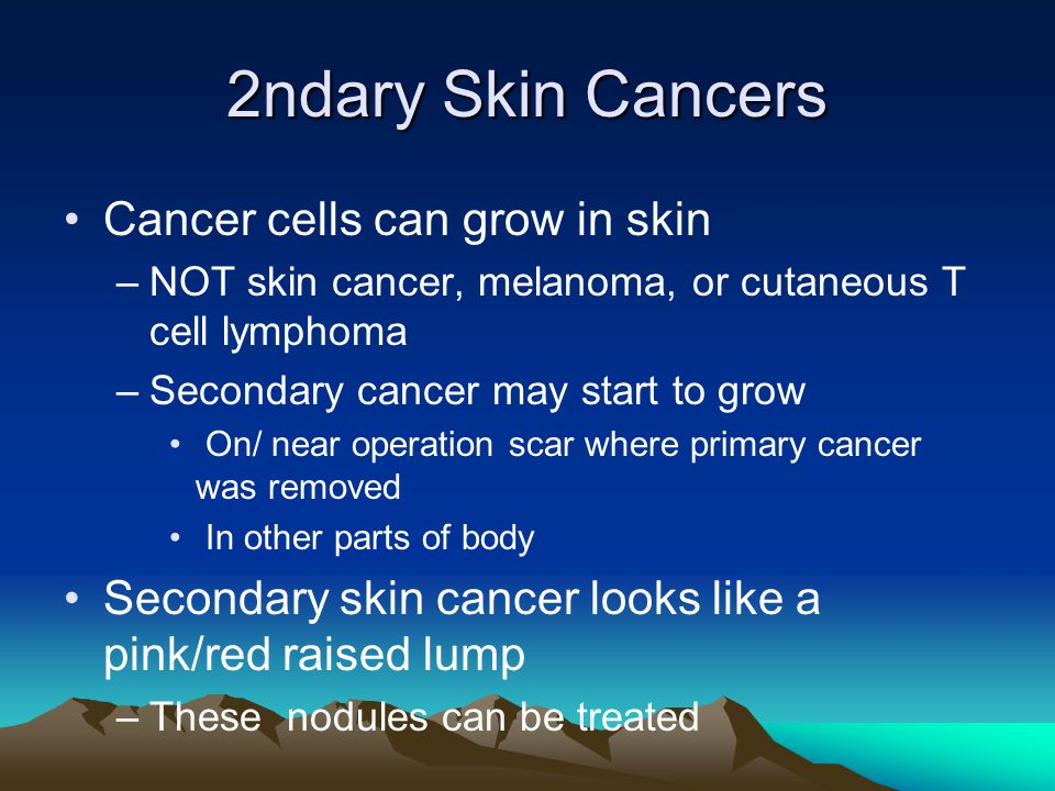2ndary Skin Cancers Cancer cells can grow in skin