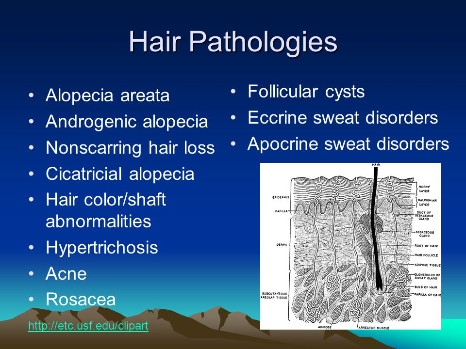 Hair Pathologies Follicular cysts Alopecia areata