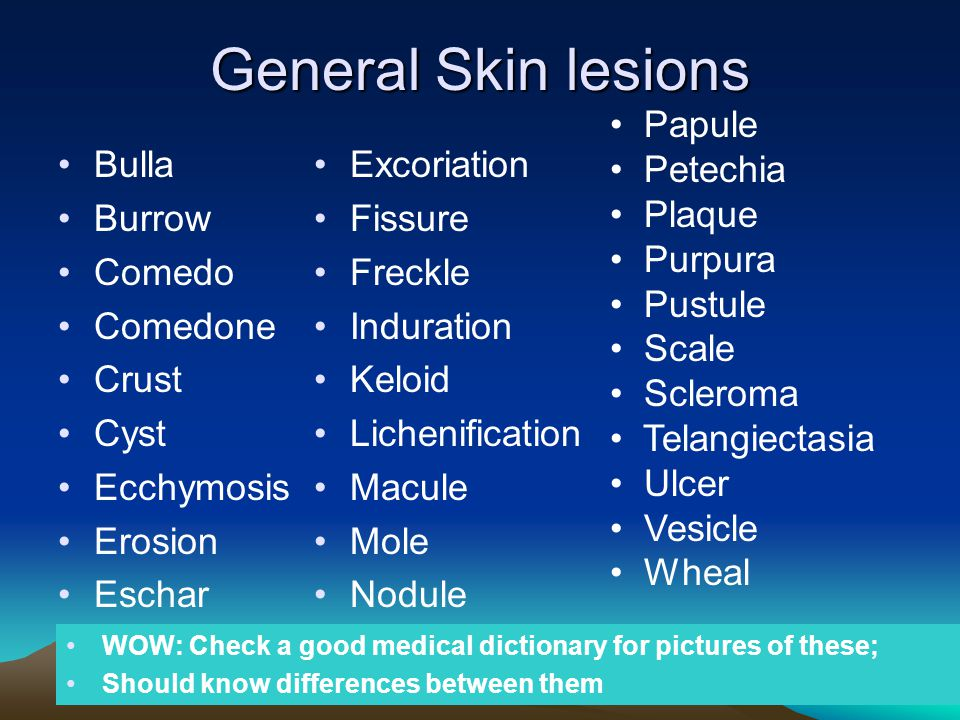 General Skin lesions Papule Petechia Plaque Purpura Pustule Scale