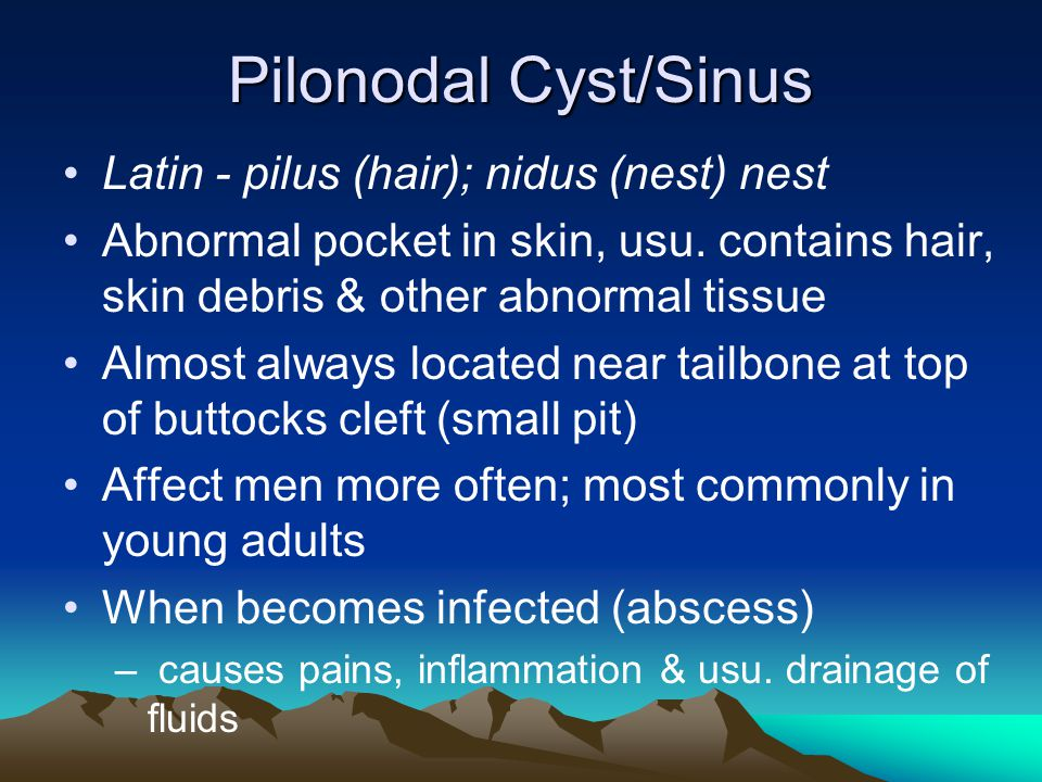 Pilonodal Cyst/Sinus Latin - pilus (hair); nidus (nest) nest