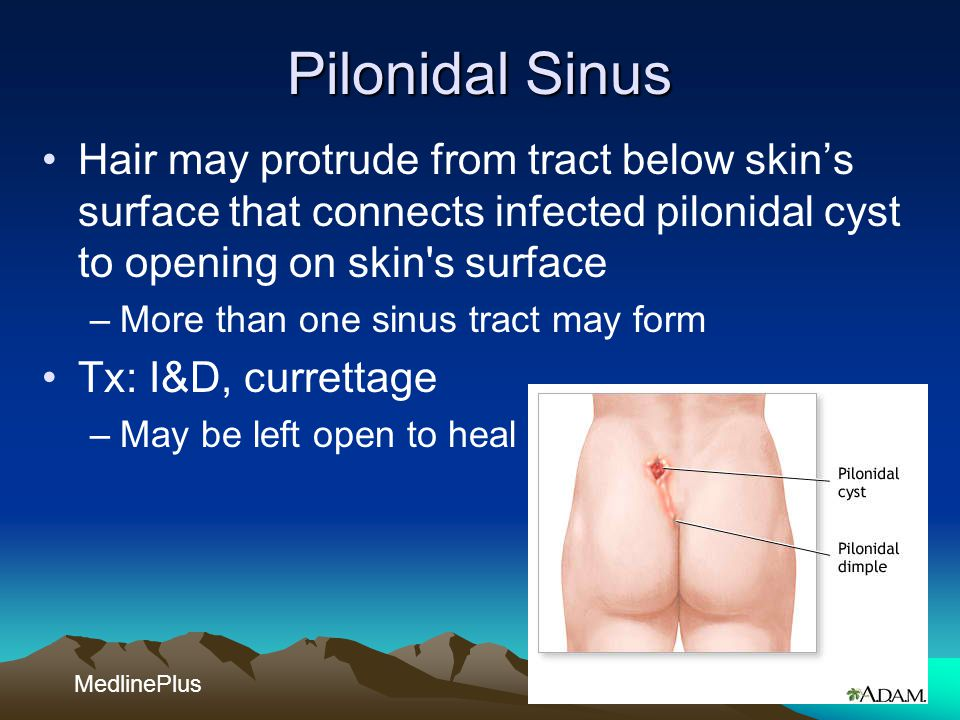 Pilonidal Sinus Hair may protrude from tract below skin's surface that connects infected pilonidal cyst to opening on skin s surface.