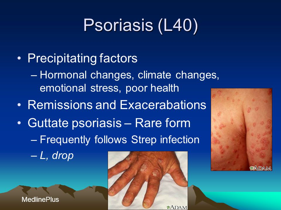 Psoriasis (L40) Precipitating factors Remissions and Exacerabations