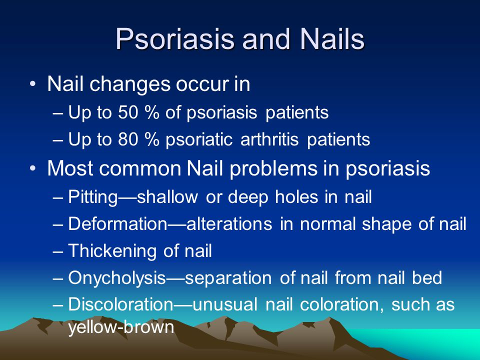 Psoriasis and Nails Nail changes occur in