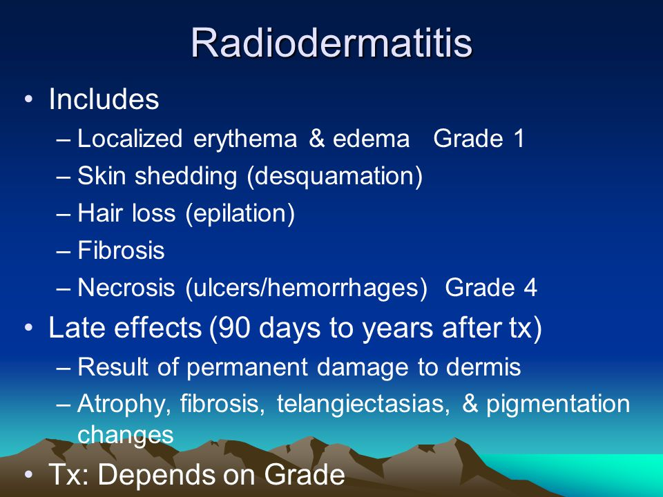 Radiodermatitis Includes Late effects (90 days to years after tx)