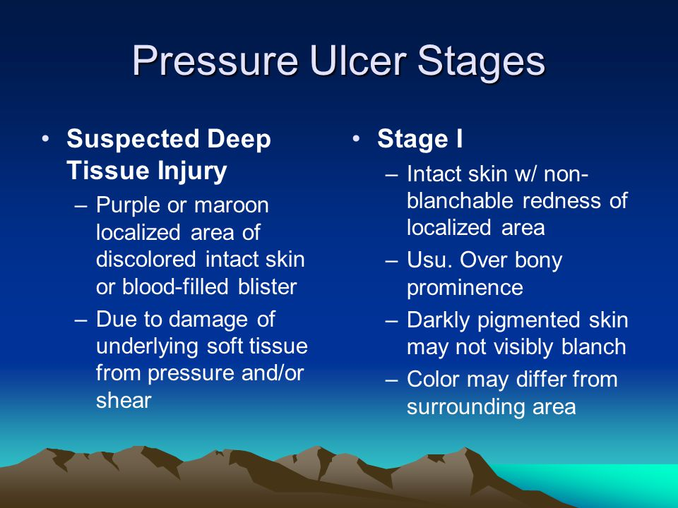 Pressure Ulcer Stages Suspected Deep Tissue Injury Stage I