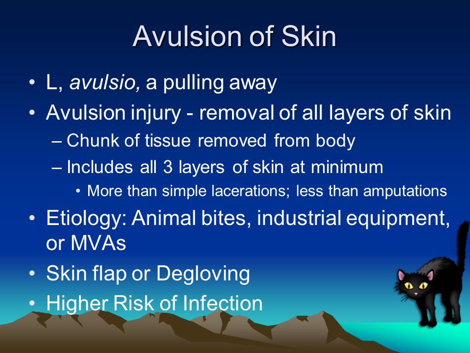 Avulsion of Skin L, avulsio, a pulling away