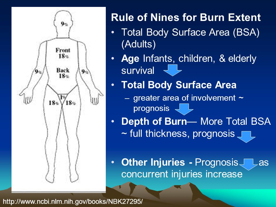 Rule of Nines for Burn Extent