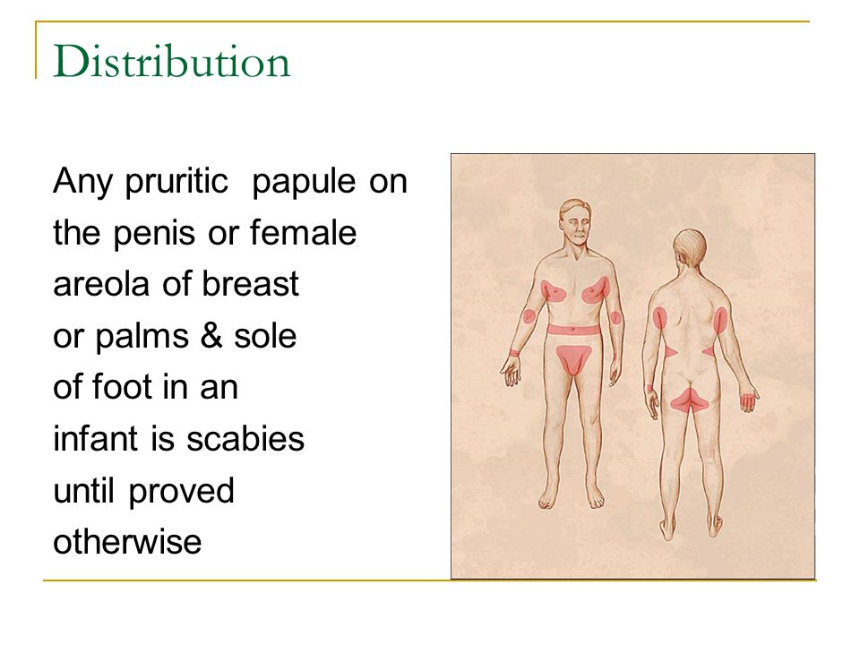 Distribution Any pruritic papule on the penis or female