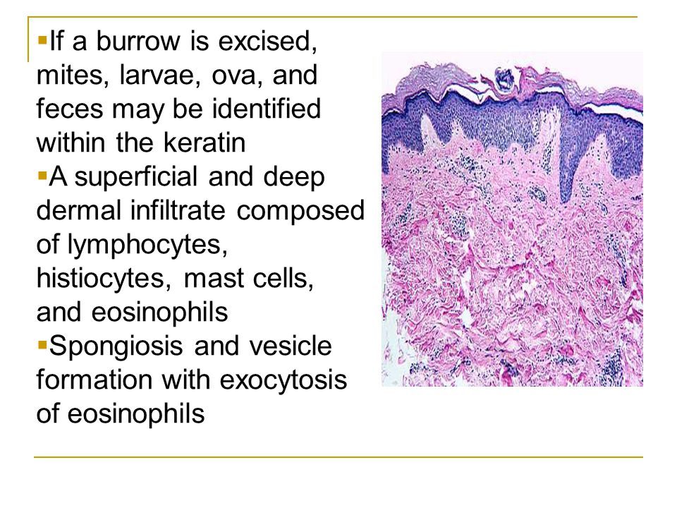 If a burrow is excised, mites, larvae, ova, and feces may be identified within the keratin