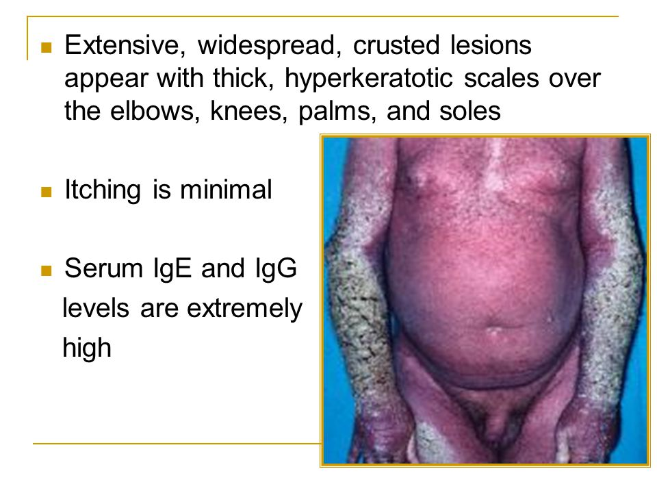 Extensive, widespread, crusted lesions appear with thick, hyperkeratotic scales over the elbows, knees, palms, and soles