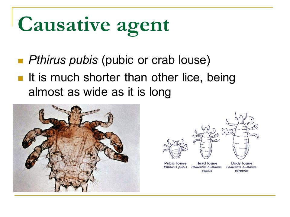 Causative agent Pthirus pubis (pubic or crab louse)